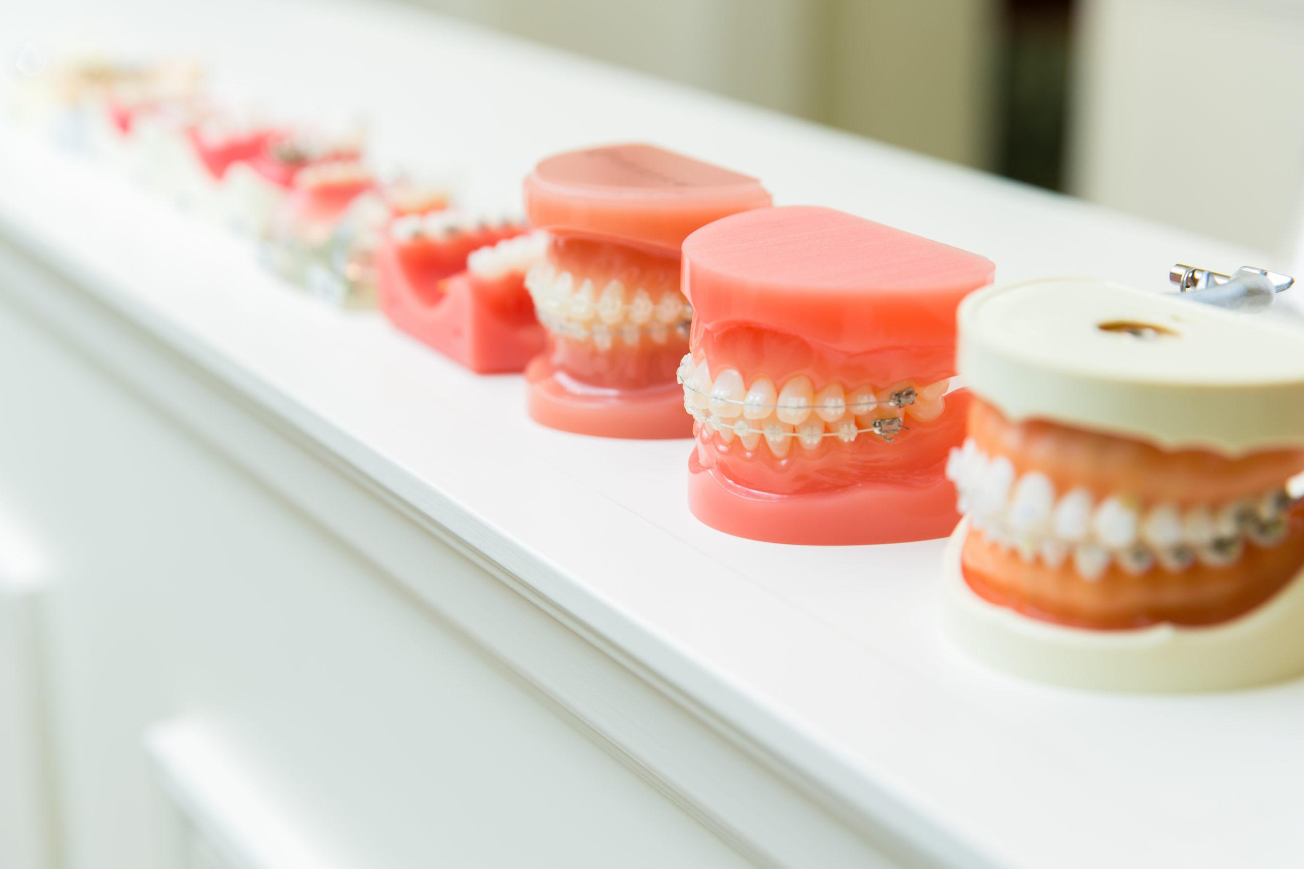 歯列矯正模型